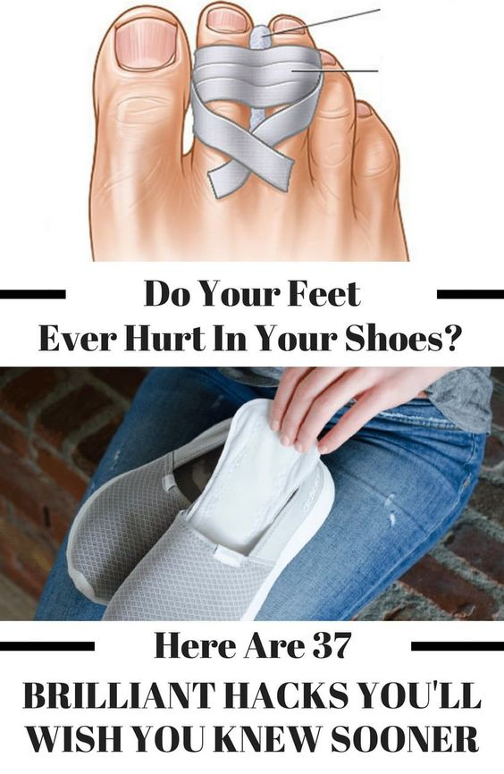 Shoe Hacks To Make Your Shoes More Comfortable